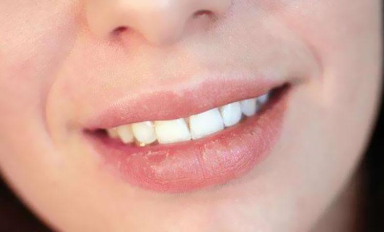 唇周容易不小心洩漏年齡,若出現乾燥、細紋則會非常明顯。
