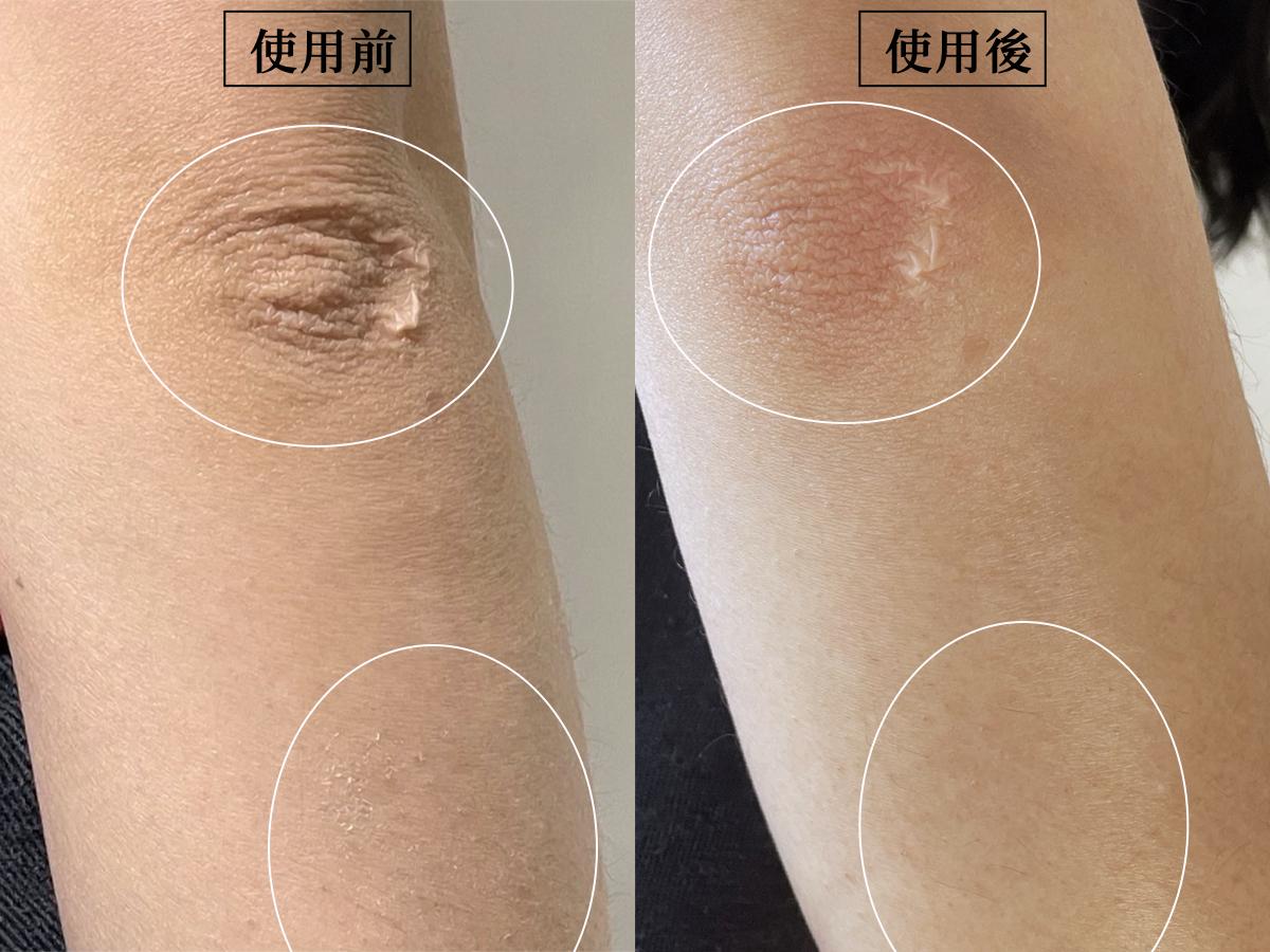 SABON身體磨砂膏效果,白茶磨砂膏,去角質,身體去角質,手肘暗沉,對比照