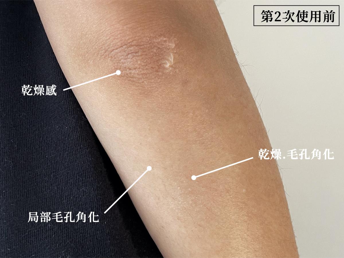 SABON身體磨砂膏效果,白茶磨砂膏,去角質,身體去角質,手肘暗沉