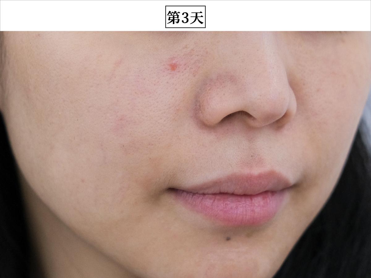妮傲絲翠15%果酸深層乳液,AHA,煥膚乳,果酸乳液,評價,效果,開箱,實測