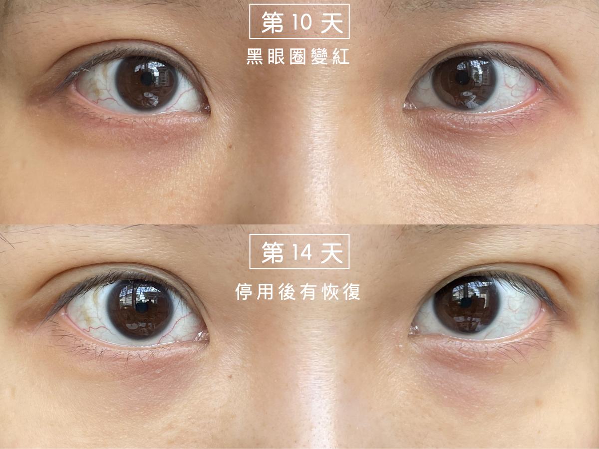 Cavilla卡薇拉睫毛增長液副作用,睫毛精華液,評價,效果,ptt,dcard,推薦,副作用,黑眼圈