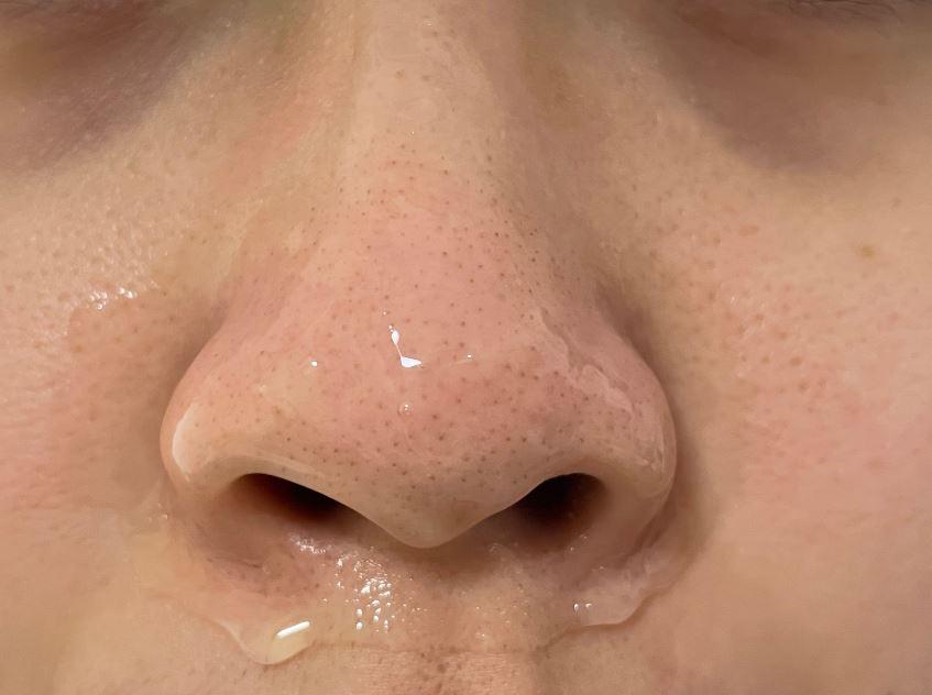 Aprilskin,金盞菊撕拉面膜,撕除式面膜,效果,評價,哪裡買,粉刺,毛孔,使用前後