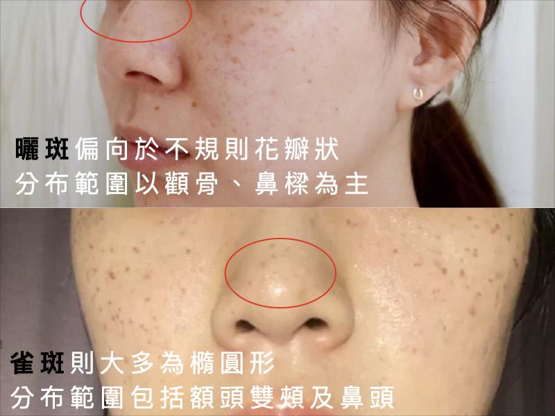 淺層斑點,曬斑,雀斑,老人斑,斑點治療,淡斑,黑斑