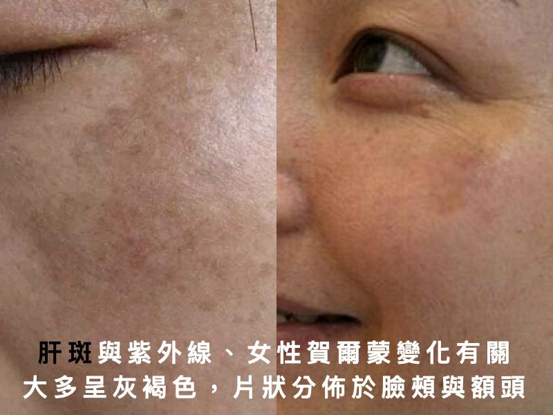 肝斑,孕斑,混合型斑點,斑點治療,淡斑,黑斑