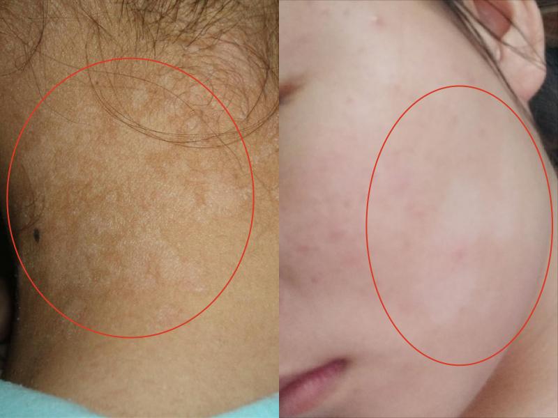 汗斑,細菌,兒童白斑,治療,白斑,斑點
